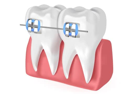 traditional-braces-partha-dental